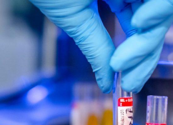 Coronavirus, oggi 4 nuovi casi nella Bat: salgono a 96 i contagiati in provincia