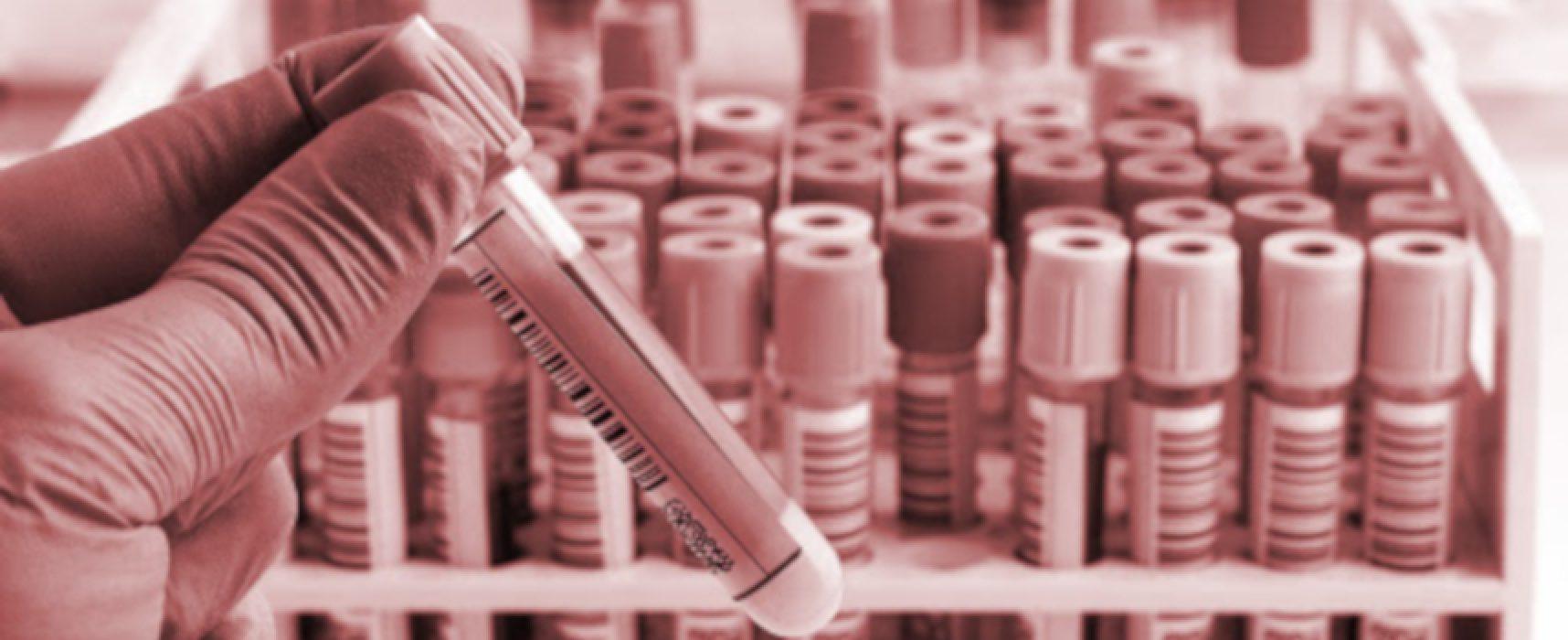 Coronavirus, aggiornamento odierno: nuovi 5 casi nella Bat e altri 5 decessi in Puglia