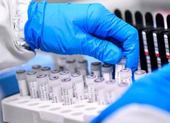 Coronavirus, aggiornamento odierno: nessun nuovo caso nella Bat, 6 decessi in Puglia