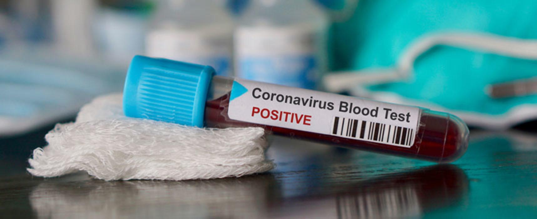 Coronavirus: 56 nuovi casi e 3 decessi nelle ultime ore, cala il numero degli attualmente positivi